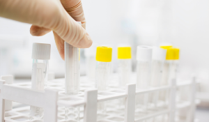 CRISPR - SeroSeq as a tool to reveal Salmonella Populations